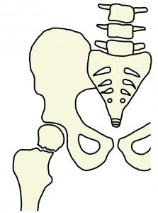 大腿部骨折